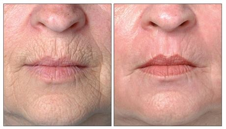 The Best Treatment For Lip Lines   Straight from the Doc