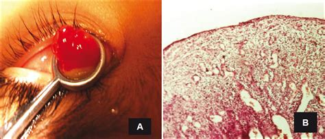 A clinicopathologic study of excised conjunctival lesions